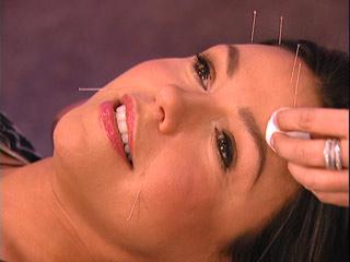 Acupunctura cosmetica