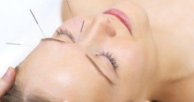 Acupunctura