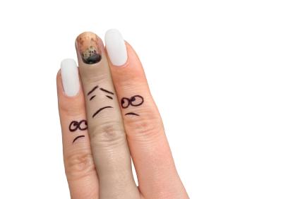 Cate ceva despre afectiunile unghiilor