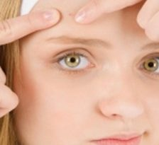 Cauzele acneei