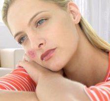 Lupus eritematos